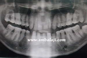 X-ray indicating a fracture in the left side of the lower jaw