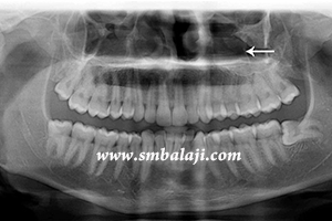 X-ray showing jaw fracture