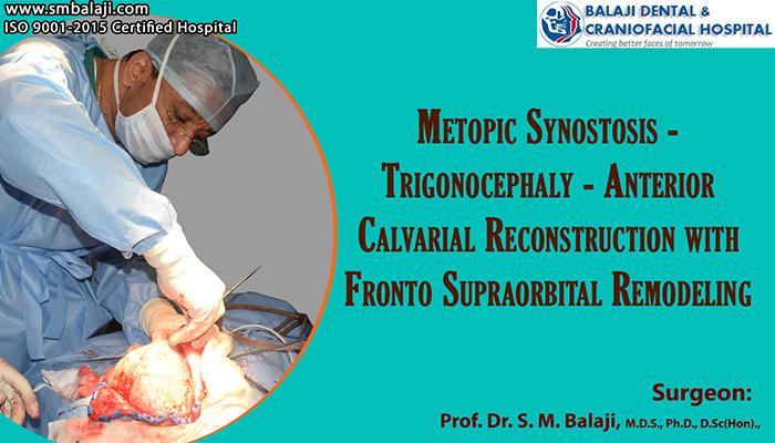 craniofacial surgery in india