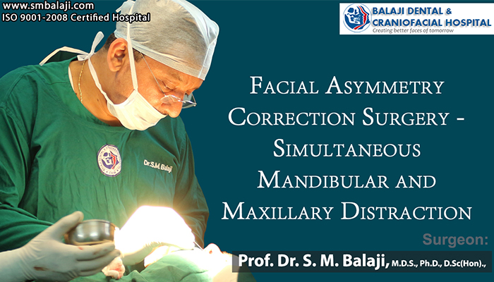 Facial Asymmetry Correction Surgery Chennai