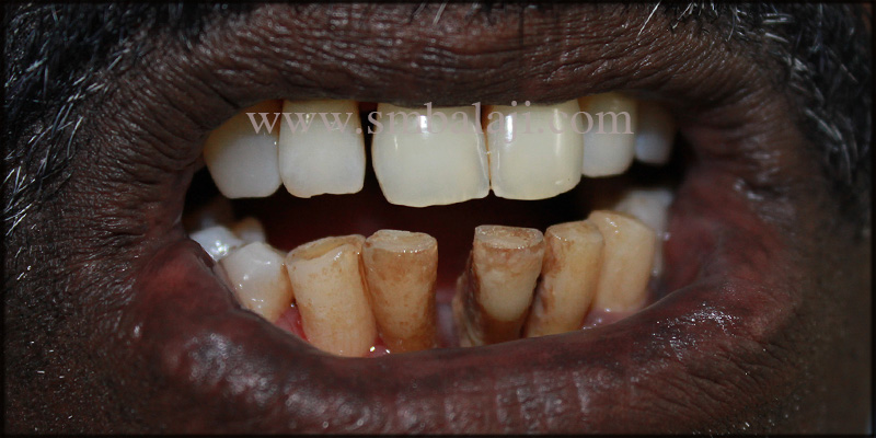 Patient with discolored, mobile lower front teeth