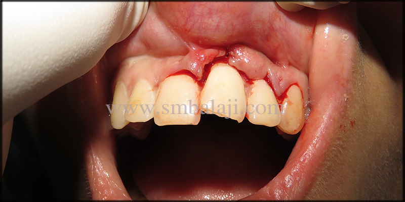 Patient with lacerated gums and displaced tooth after the traumatic fall