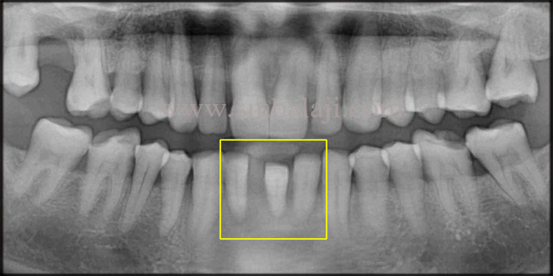 Pre-operative OPG indicating severe bone loss