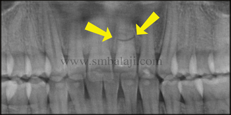 Pre-operative OPG showing horizontal root fracture of the tooth