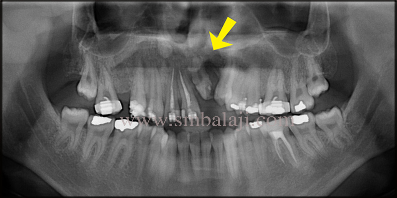 Pre operative OPG showing rotated teeth with incomplete root formation and bone defect