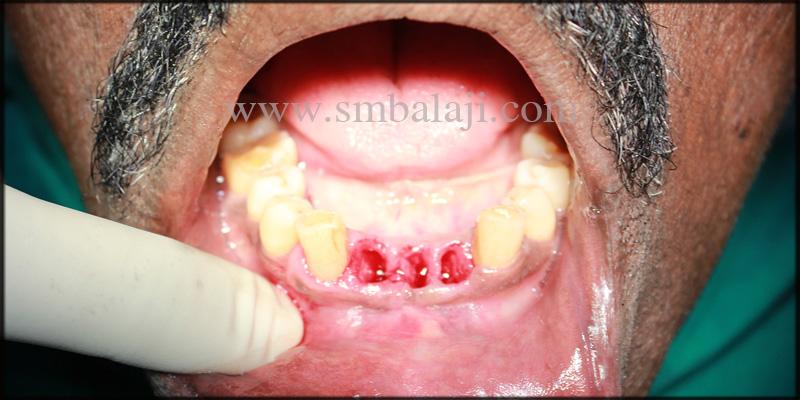 Extracted empty teeth socket