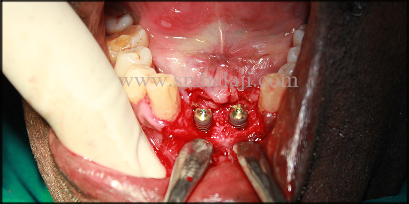 Immediate dental implant placed with stability and retention