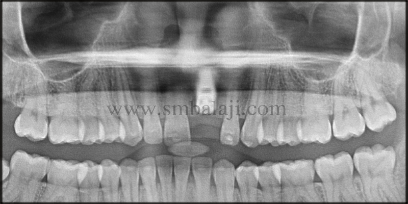 Post-operative OPG showing well positioned implant at the relative site