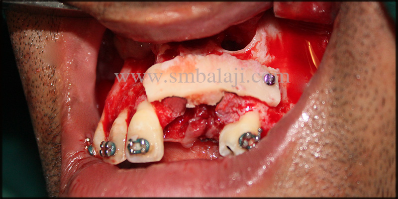Autogenous bone graft placed in bone defect by means if fixed screws