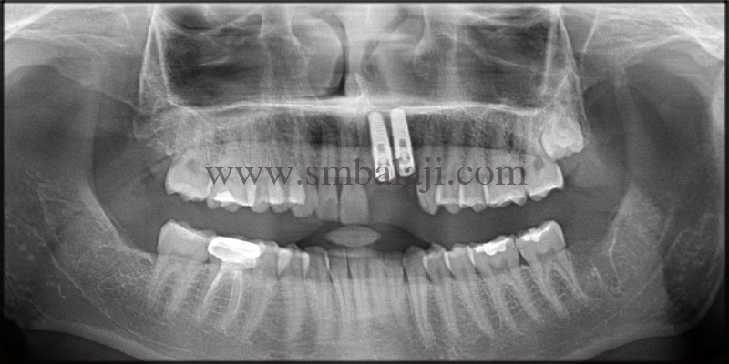 Post-operative OPG shows well integrated implant with the jaw bone