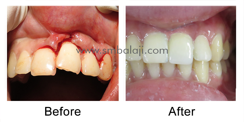 Replacement of Fractured Tooth with Dental Implant before after picture
