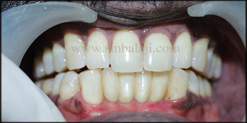Confident patient with fixed ceramic prosthesis
