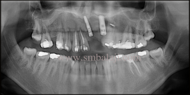 Post operative OPG showing osseointegrated Dental implants with the jaw bone