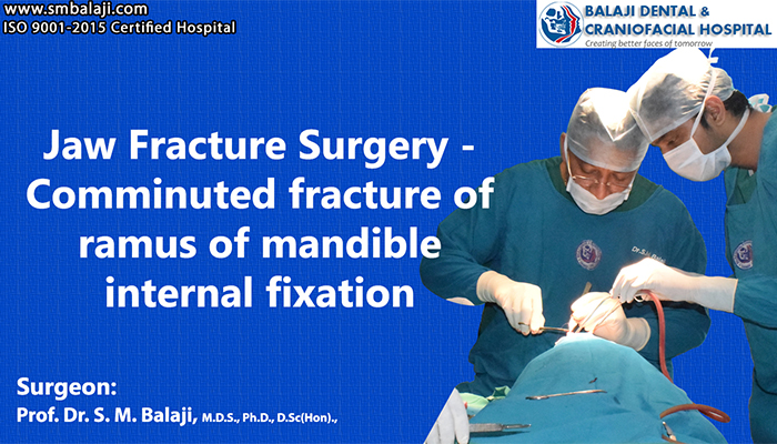 Jaw Fracture Surgery chennai india