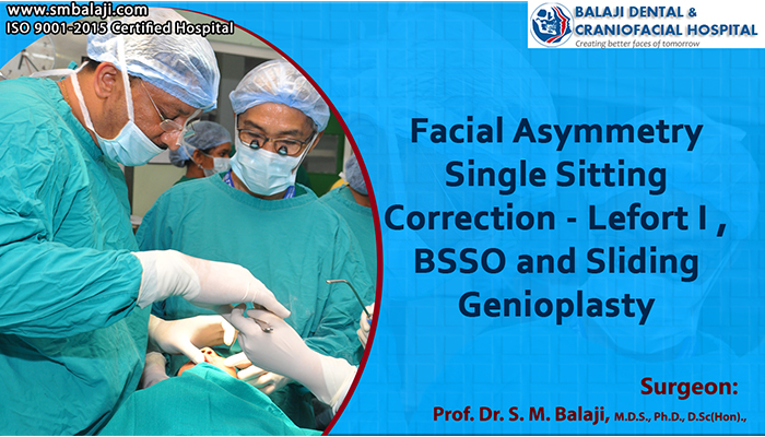 Facial Asymmetry Single Sitting Correction – Lefort I, BSSO and Sliding Genioplasty