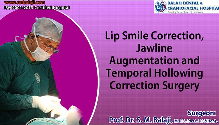 Smile Correction Chennai