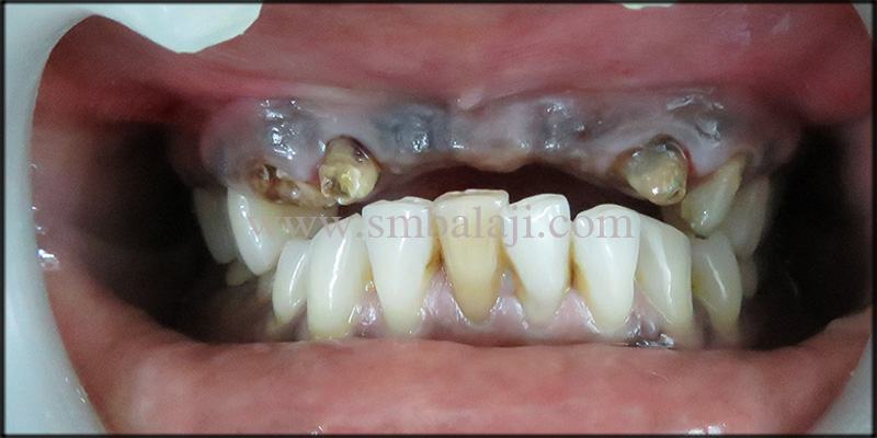 Patient With Missing Upper Central Incisors