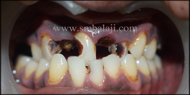 Patient with severely decayed and broken teeth