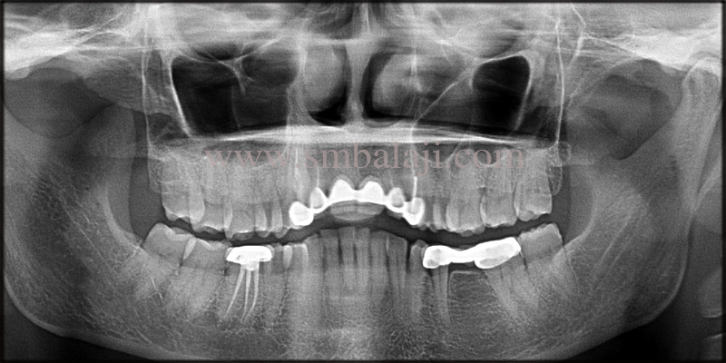 Pre-Operative Opg Showing Missing Upper Central Incisors And Incomplete Root Canal Treated Teeth On Either Side Of The Dental Bridge