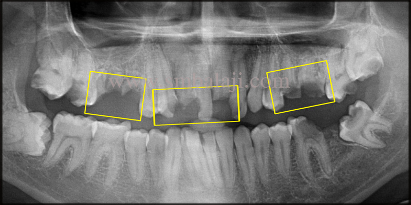 Pre-operative OPG shows root stumps and broken teeth in the upper anteriors and posteriors