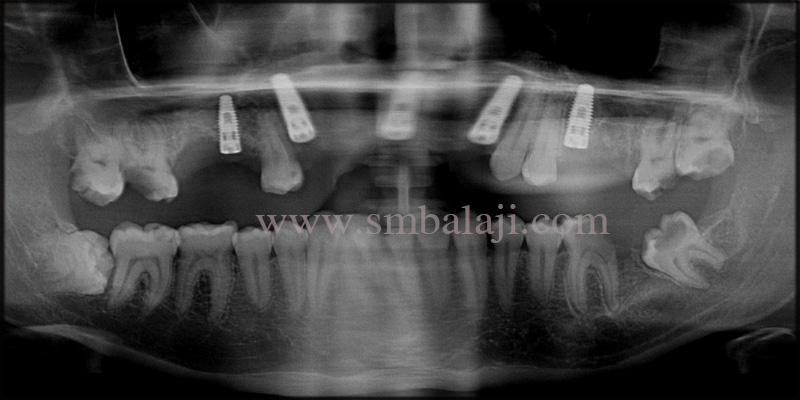 Post- operative OPG shows well osseointegrated dental implants
