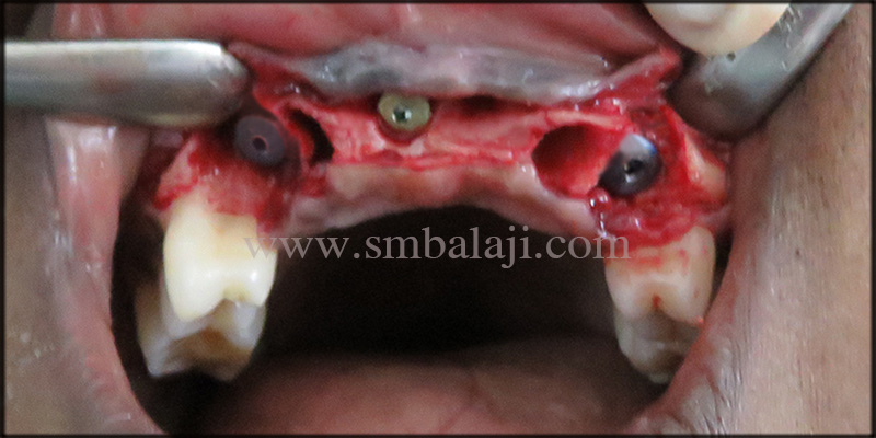 Dental Implants Placed At The Relative Site