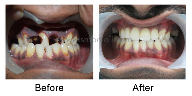 Patient before and after rehabilitation
