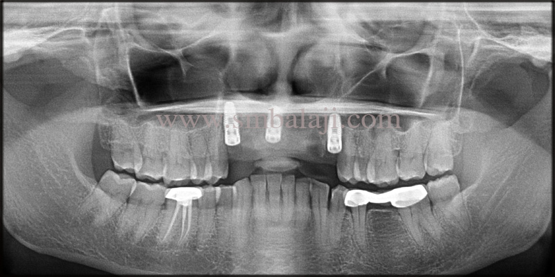 Post-Operative Opg Showing Well Integrated Dental Implants In The Upper Jaw Bone
