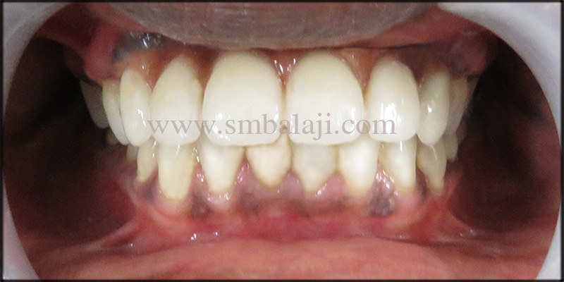 Happy Patient With Natural Looking Fixed Ceramic Prosthesis