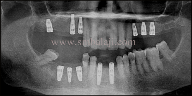Post-operative x-ray shows well integrated implants with the jaw bone