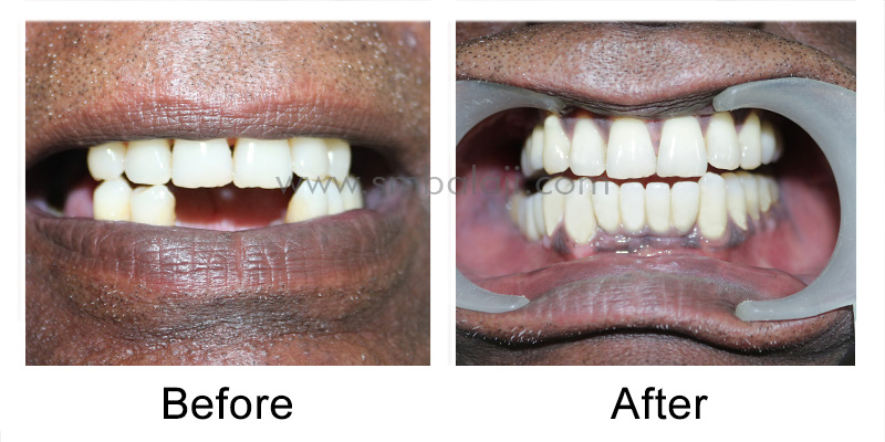 Patient before and after makeover