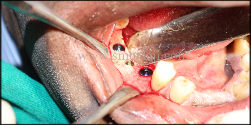 Dental implants placed in lower right posterior region