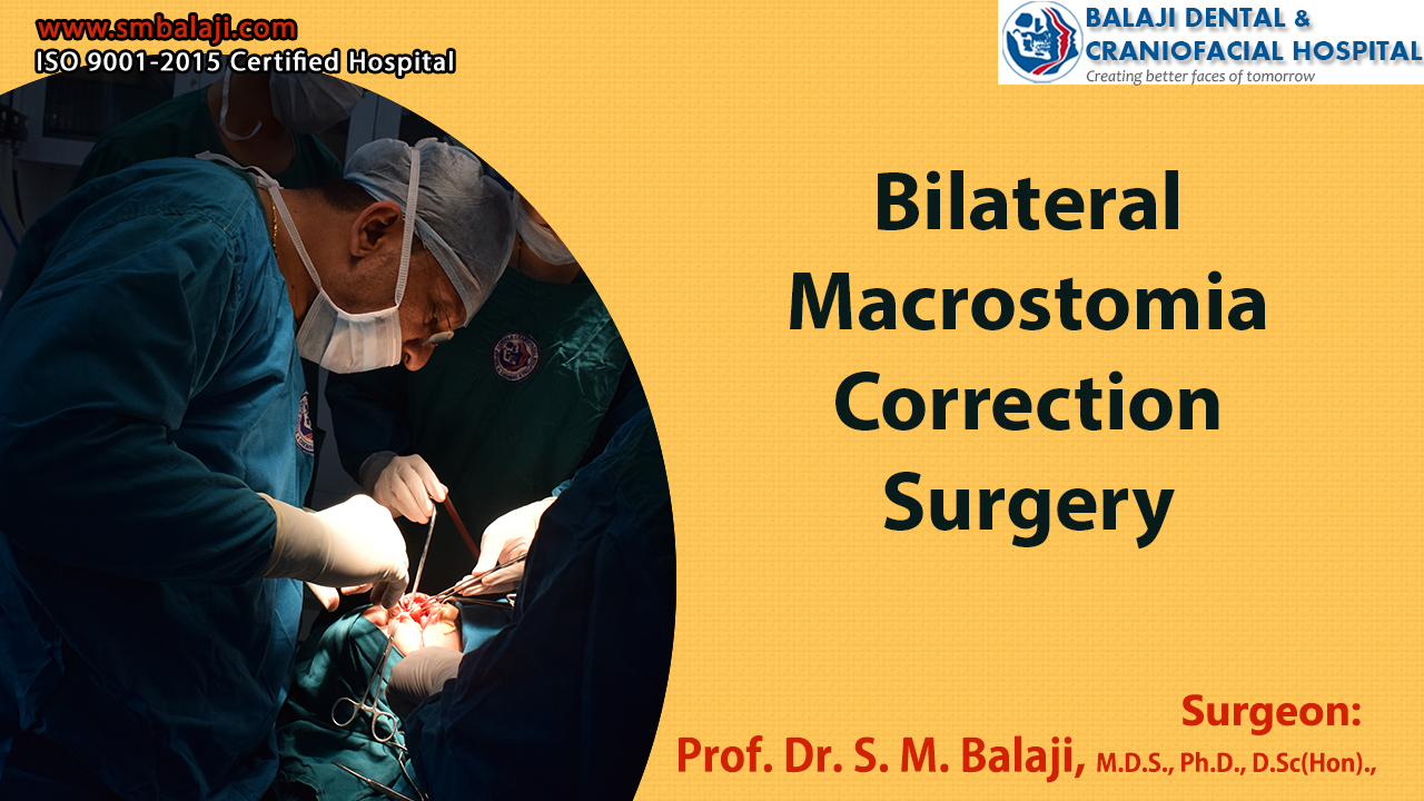 Bilateral Macrostomia Correction Surgery
