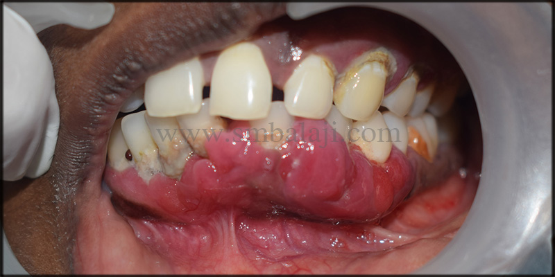 Patient With Enlarged Gums In The Lower Anterior Region