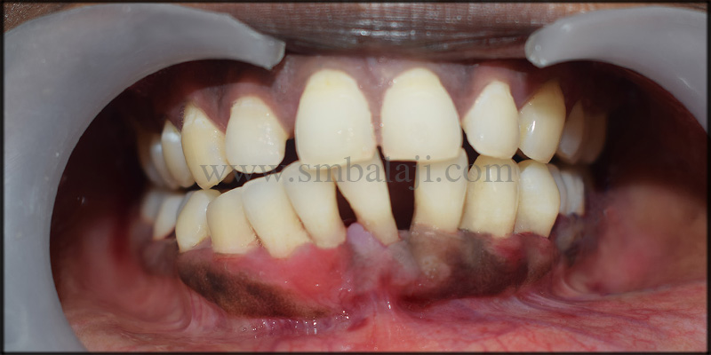 Post Operative Outcome Shows Reformed Gums In A More Natural Position With The Teeth