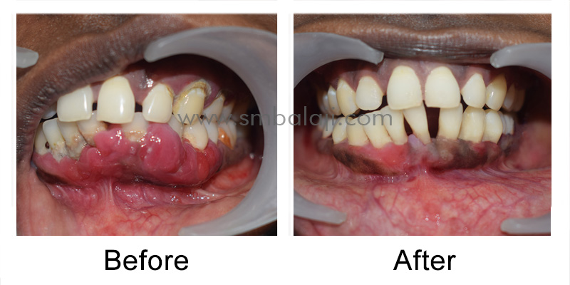 Patient Before And After 2 Weeks Post-Operatively