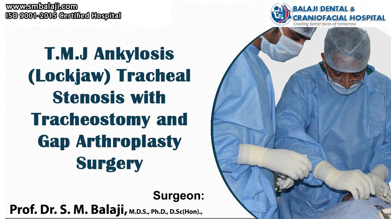 TMJ Ankylosis ( Lockjaw) tracheal stenosis with tracheostomy and Gap Arthroplasty Surgery