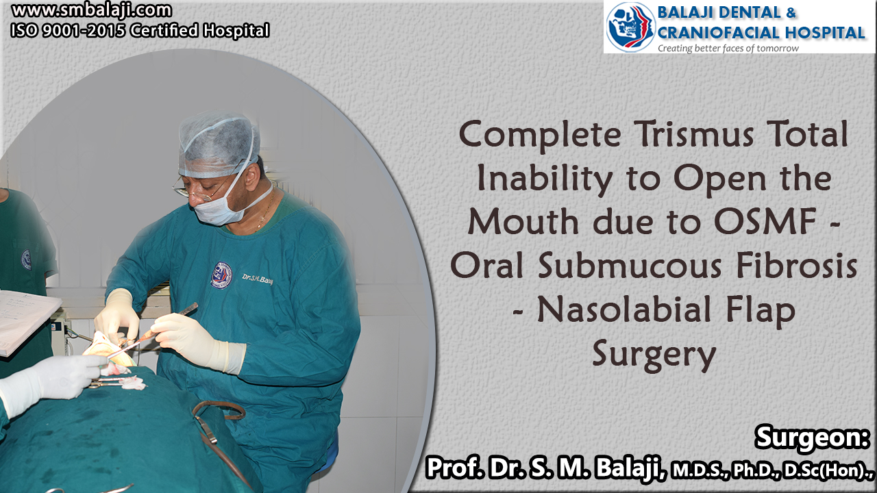 Complete Trismus total inability to open the mouth due to OSMF - Oral Submucous Fibrosis – Nasolabial Flap Surgery