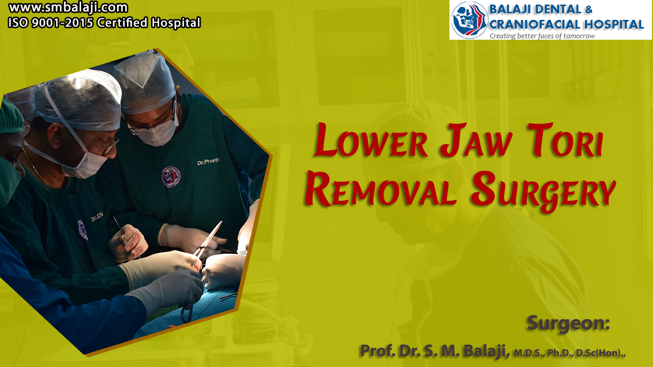 Jaw Tori Removal Surgery