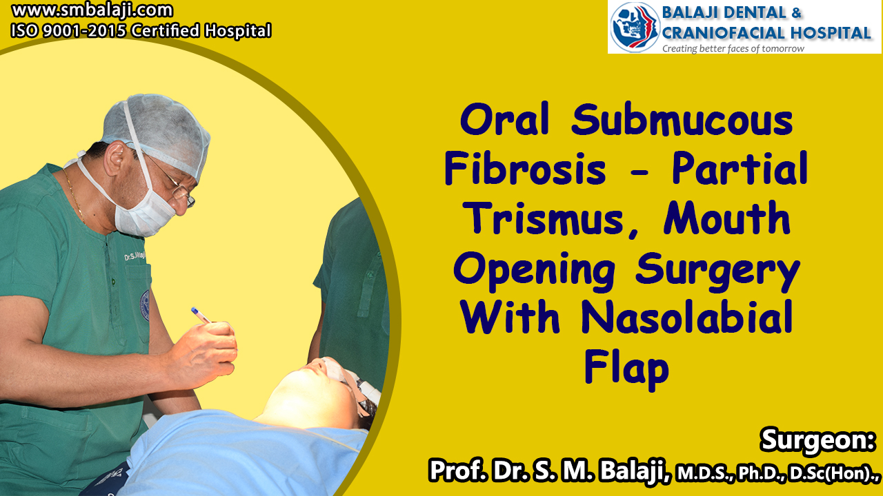 Oral Submucous Fibrosis - partial Trismus Mouth Opening Surgery With Nasolabial Flap Surgery