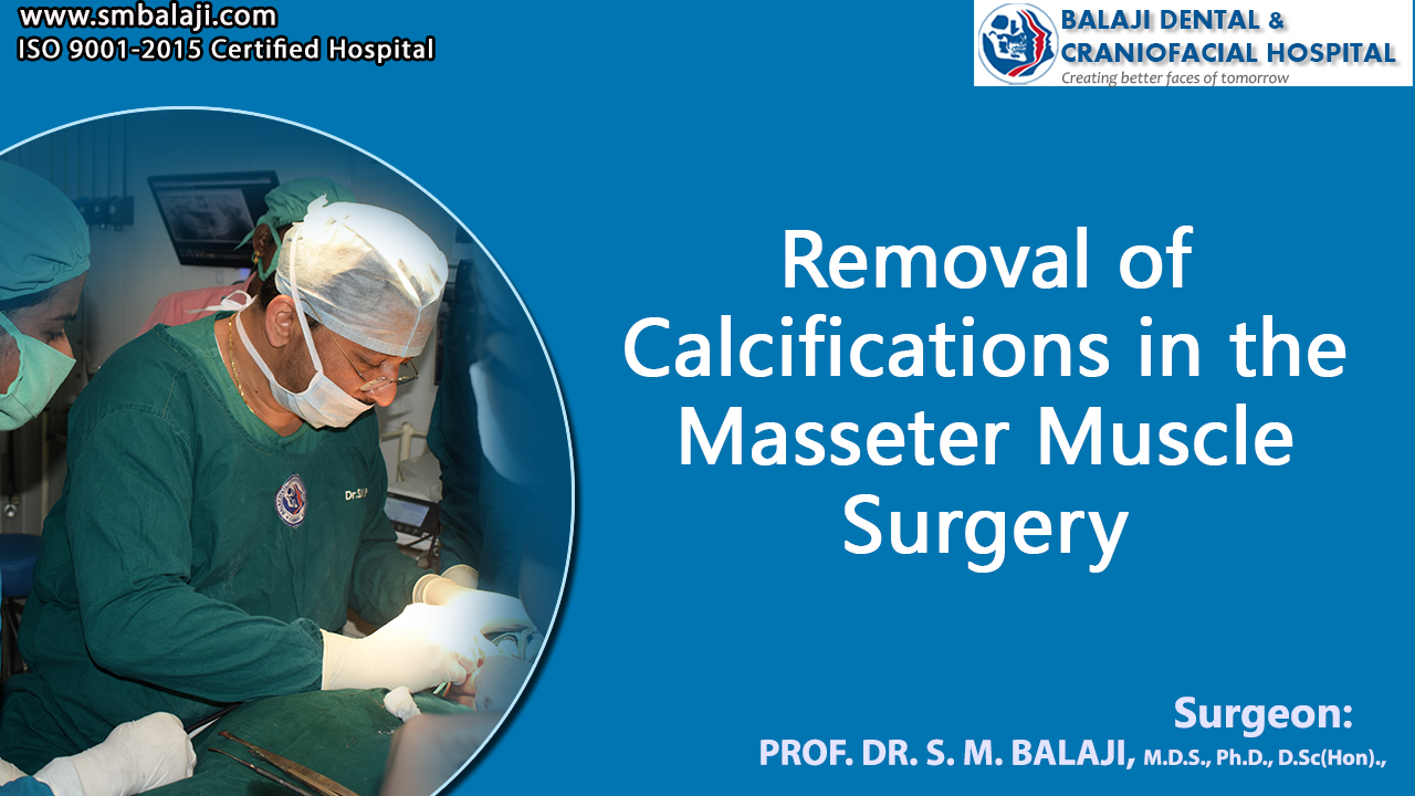 Removal of Calcifications in the masseter muscle surgery