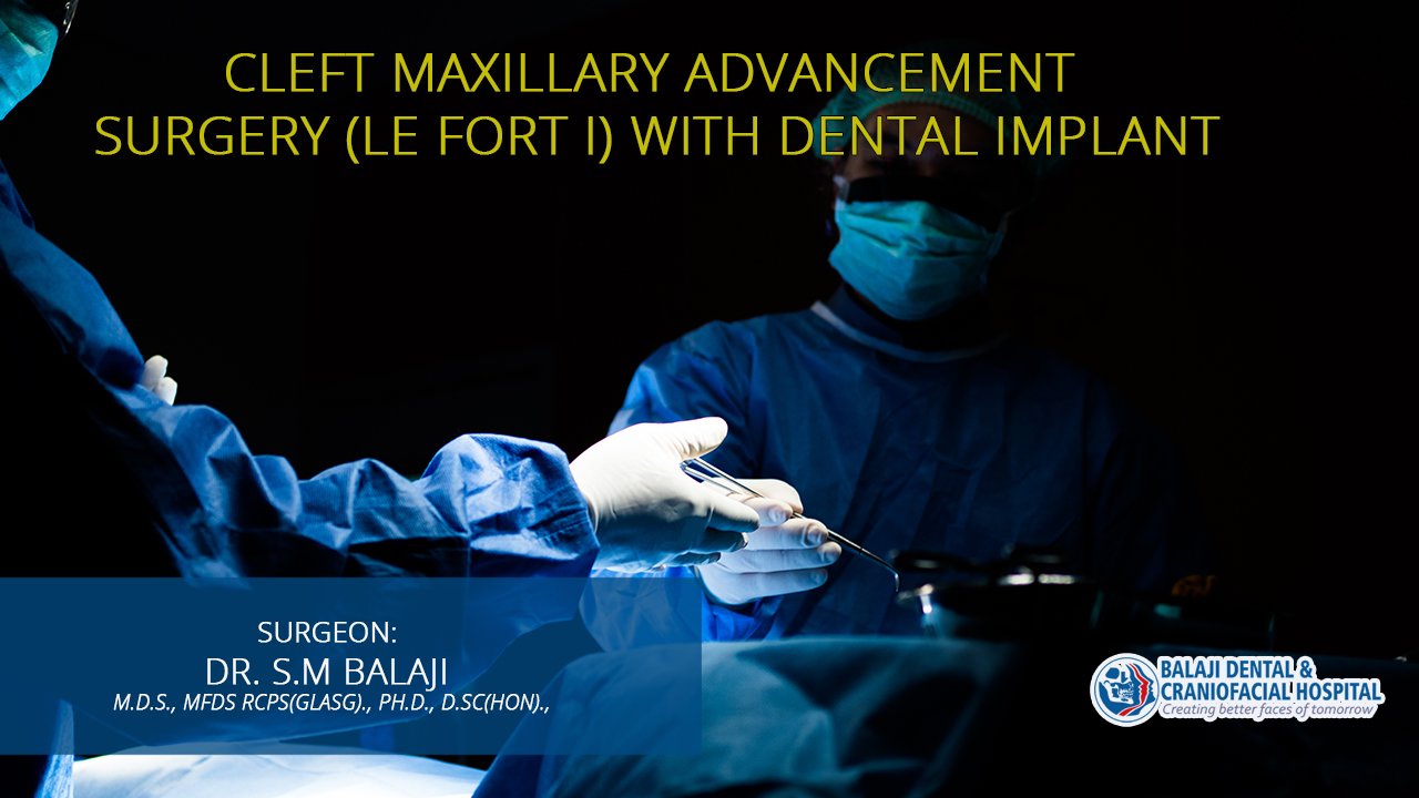 Cleft Maxillary Advancement Surgery (Le Fort I) with Dental Implant