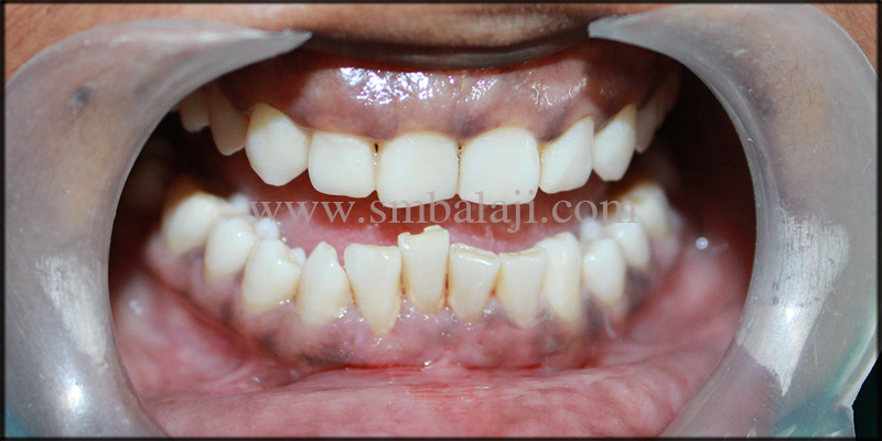 1) Patient With Malaligned Lower Front Teeth