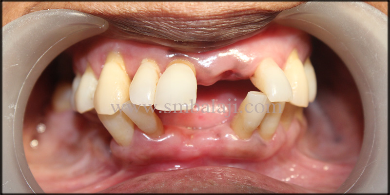 Patient with missing upper and lower anterior teeth