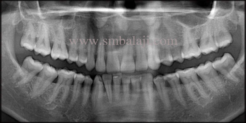Pre-Operative Opg Shows Bone Loss At The Relative Site