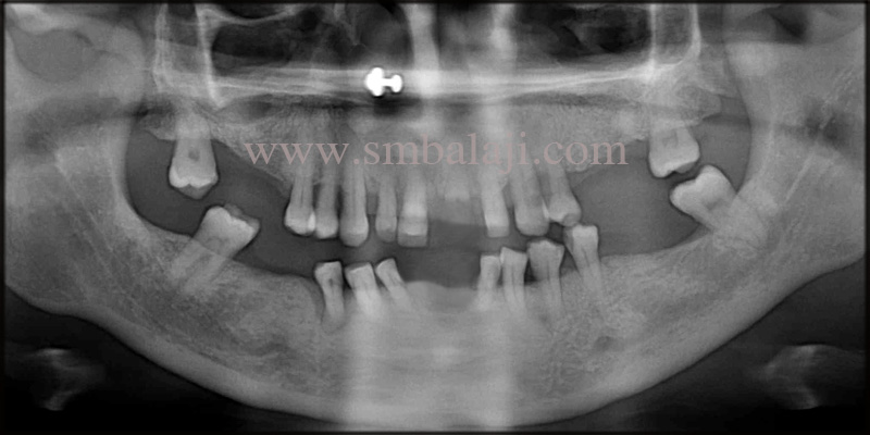 Pre-operative OPG taken shows generalized bone loss and missing teeth in the upper and lower jaw