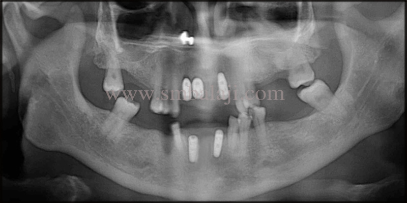 Post-operative OPG shows dental implants in chime with the jaw bone