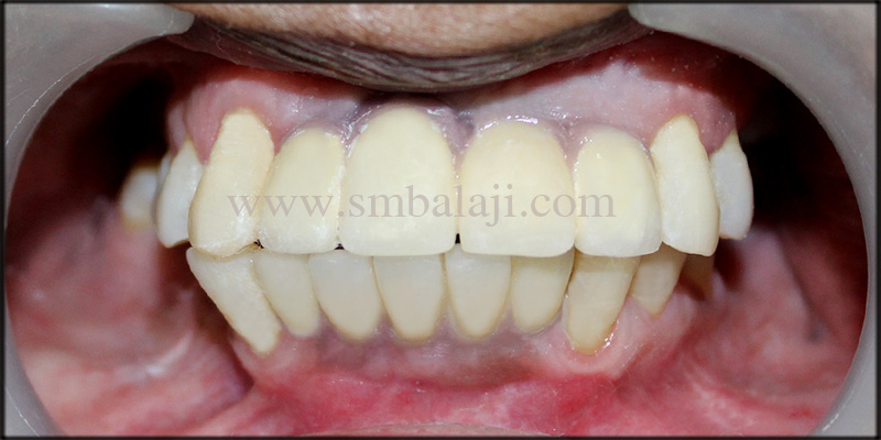 Aesthetically looking ceramic prosthesis fixed on the dental implants