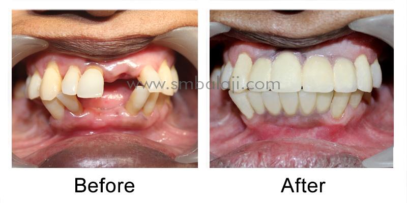 Dental Implants and Ceramic Crowns for Smile Makeover