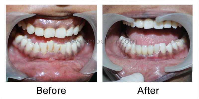 Dental Implants for Malaligned Mobile Teeth